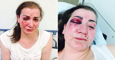 Köln'de Türk kadına tramvayda saldırı